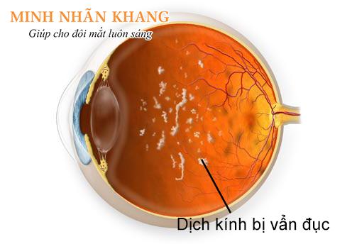 Đục dịch kính - Ruồi bay trước mắt là bệnh gì?